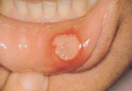 Aphthous Ulcers – Stomatitis