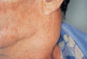 Hodgkin disease: swelling of the cervical lymph nodes.