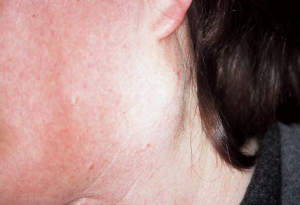Neck Swelling Types, definitions, Etiology, CP , DD, Treatment
