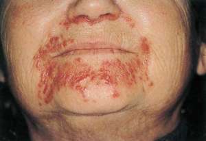 Sarcoidosis: multiple lesions on the perioral skin