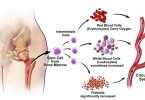 Essential thrombocytosis