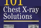 101 Chest X-ray Solutions PDF