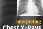 Interpreting Chest X-Rays Illustrated with 100 Cases PDF