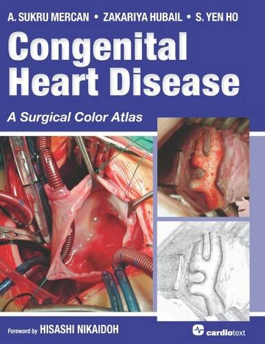 congenital heart disease Learn about treatments and complications of heart defects present at birth and care for adults with these defects.