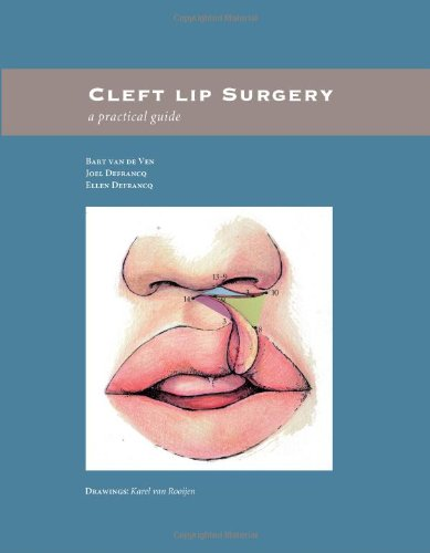 Cleft lip surgery a practical guide