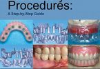 Implant Laboratory Procedures A Step By Step Guide PDF