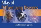 Atlas of Diffuse Lung Diseases 2017 PDF