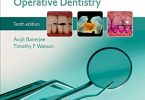 Pickard's Guide to Minimally Invasive Operative Dentistry 10th Edition PDF