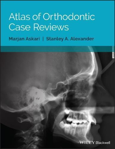 Atlas of Orthodontic Case Reviews  PDF