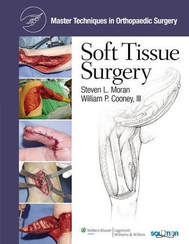Master Techniques in Orthopaedic Surgery  PDF