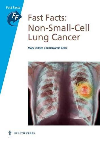Fast Facts Non-Small-Cell Lung Cancer  PDF