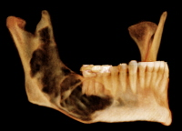 Surgical Management of Cysts of the Jaws