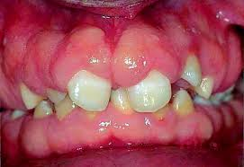 Drugs that cause Gingival Hyperplasia