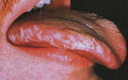 HIV AIDS and Oral complications of HIV disease
