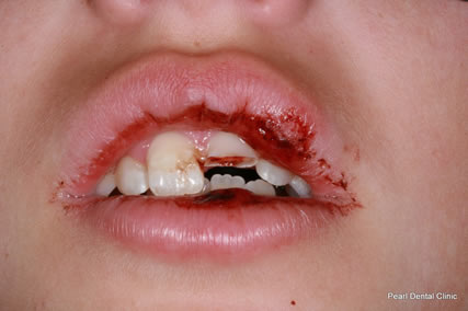 Dental Trauma Pediatric