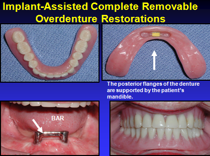 Dental Implants For The Geriatric Patient
