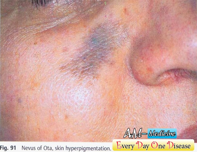 Every day one disease – Nevus of Ota