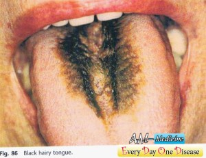Every day one disease Black Hairy Tongue