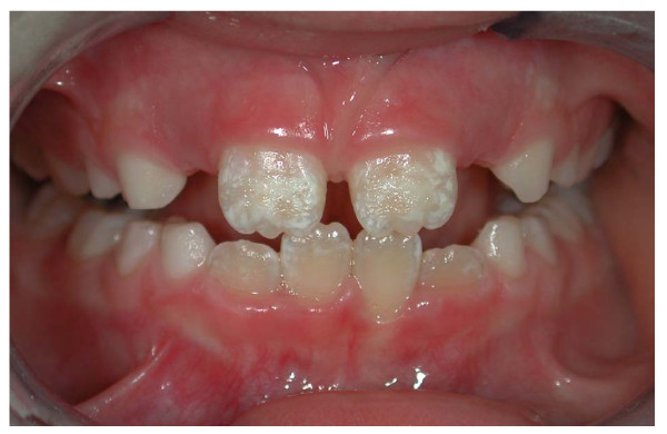 Stained Teeth and Treatments