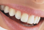 Complete denture Diagnosis and treatment Planning