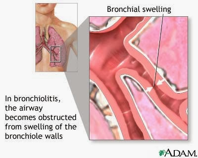 Every day one disease Bronchiolitis