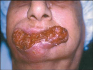 Mouth Cancer – Surgical Management