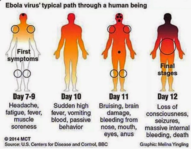 What is ebola virus ?
