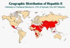 Hepatitis – Hepatitis E