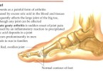 Gout ( Reading materials ) word