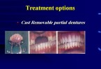 Complete denture – Introduction to Prosthodontics ppt