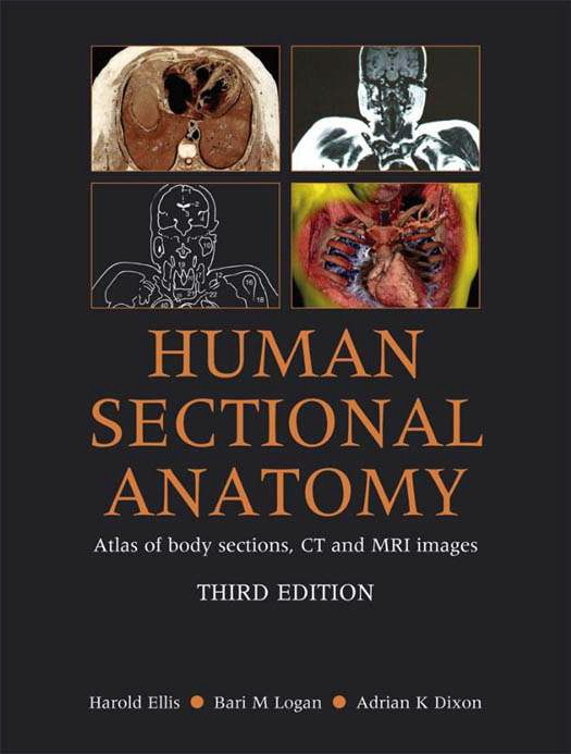 Human Sectional Anatomy Atlas Of Body Sections Ct And Mri Images