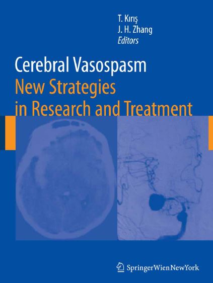 Cerebral Vasospasm New Strategies in Research and Treatment PDF