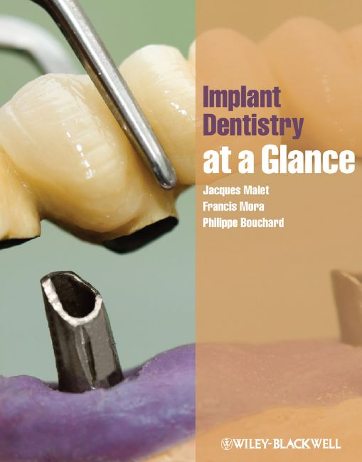 Implant Dentistry at a Glance PDF