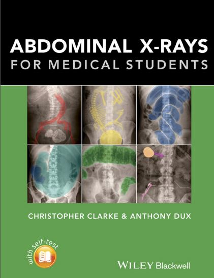 Abdominal X-rays for Medical Students PDF