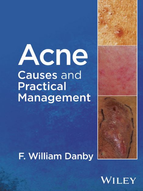 Acne Causes and Practical Management PDF