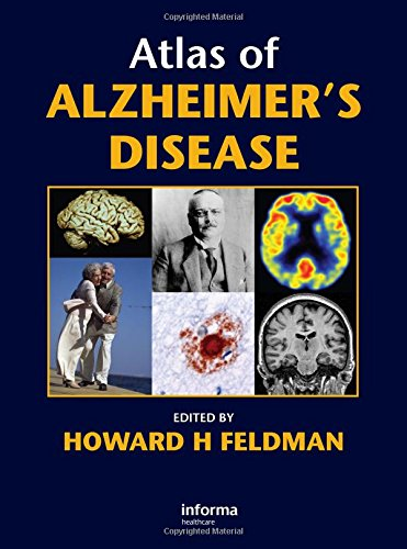 Atlas of Alzheimer's Disease PDF