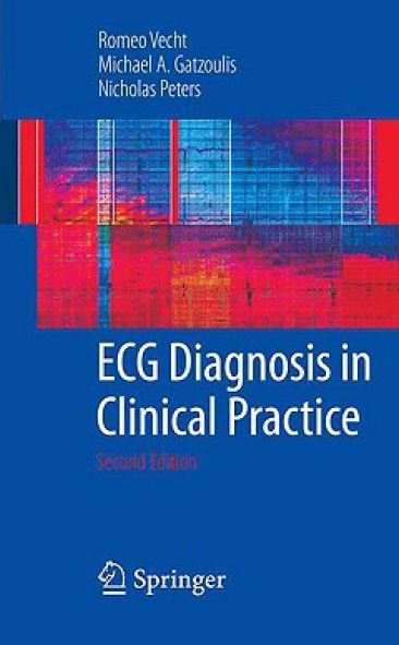 ECG Diagnosis in Clinical Practice PDF
