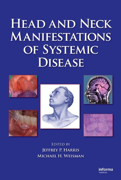 Head and Neck Manifestations of Systemic Disease PDF