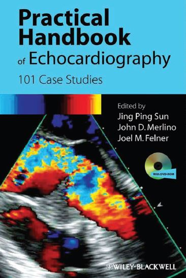 Practical Handbook of Echocardiography PDF