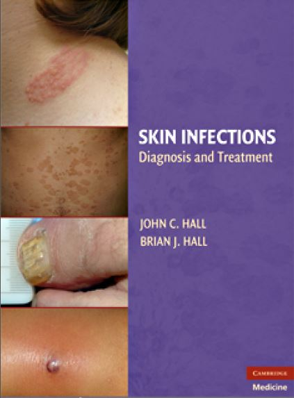 Skin Infections Diagnosis and Treatment PDF