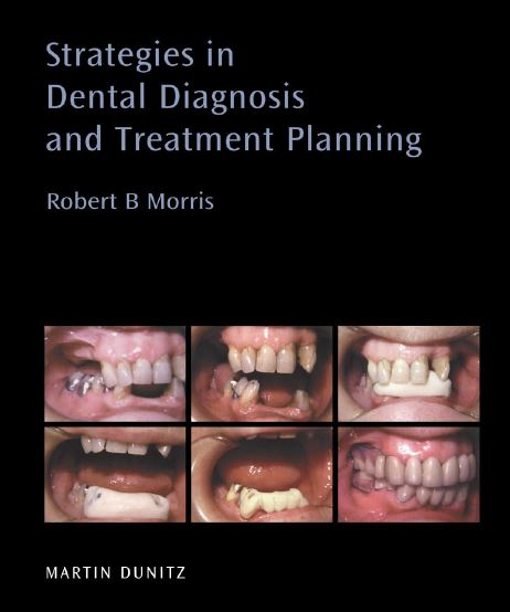 Strategies in Dental Diagnosis and Treatment Planning PDF
