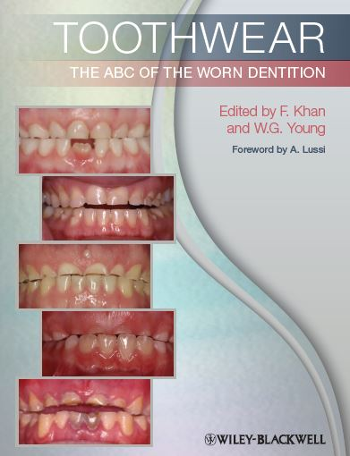 Toothwear The ABC of the Worn Dentition PDF
