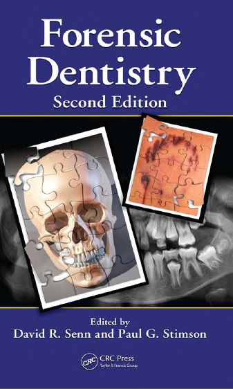 Forensic Dentistry 2nd Edition PDF