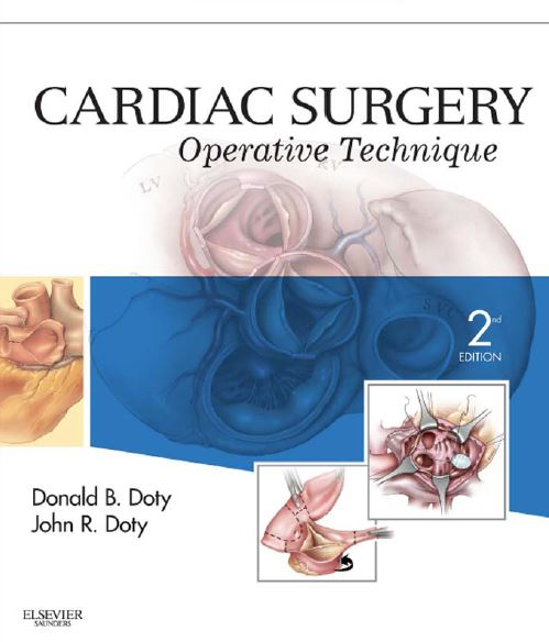 Cardiac Surgery Operative Technique 2nd Edition PDF