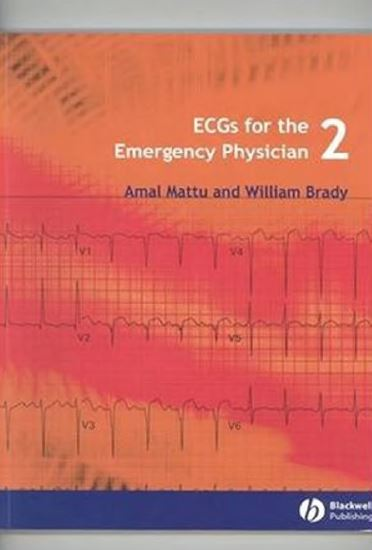 ECGs for the Emergency Physician 2 PDF