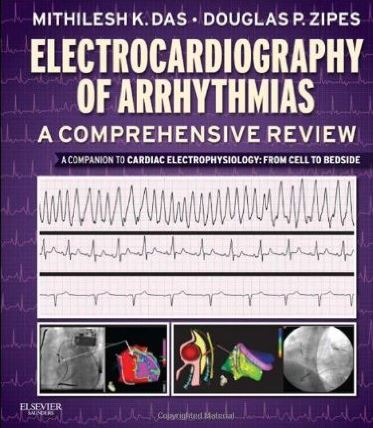 Electrocardiography of Arrhythmias 1st Edition PDF