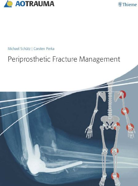 Periprosthetic Fracture Management PDF