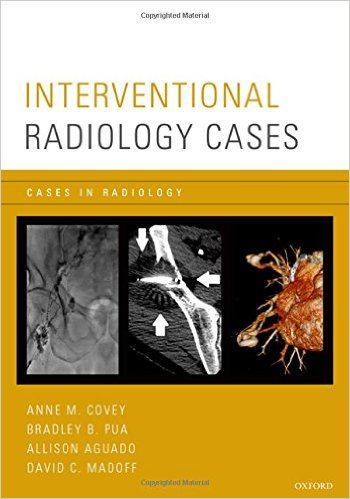 Interventional Radiology Cases PDF