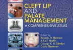 Cleft Lip and Palate Management PDF