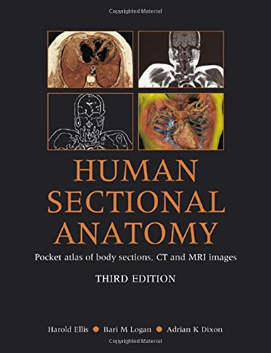 Human Sectional Anatomy 3rd Edition  PDF